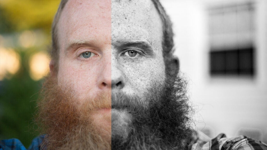 Emphasizing Freckles in Adobe Photoshop and Lightroom