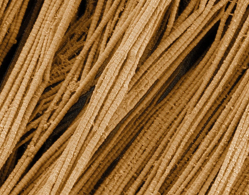 Collagen fibers, which make up a quarter of the protein mass in an adult human